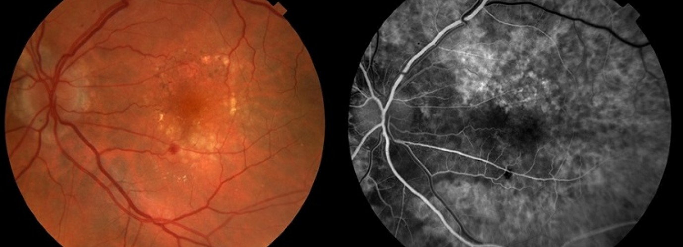 Флюоресцентна ангіографія очного дна